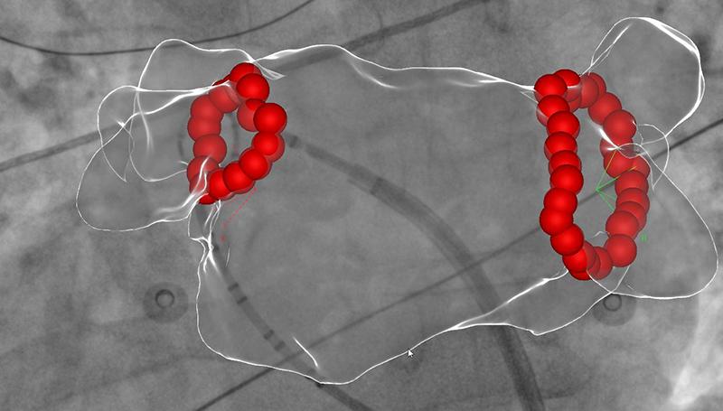 Ablationslinien im linken Vorhof nach erfolgreicher Lungenvenenisolation